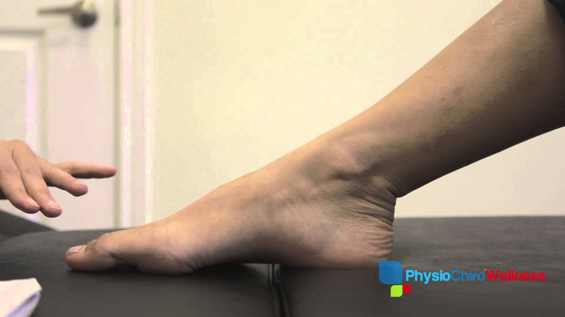 Acupuncture Treatment for Foot Arthritis PhysioChiroWellness